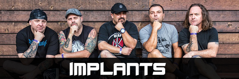 implants_band.jpg